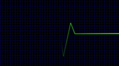 Green cardiogram - digital animation Stock Footage