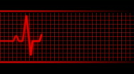 Stock Video Footage of Red EKG heart rate.  Loopable. HD.