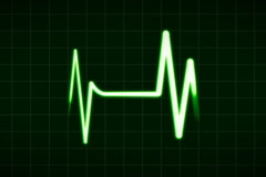 Heartbeat monitor, NTSC - stock footage