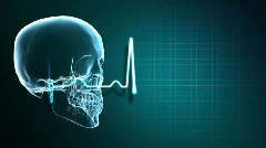 X-Ray Skull and Heart Monitor Stock Footage