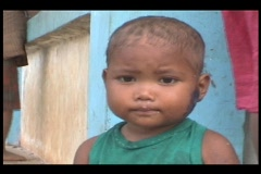 Malnourished Kid ( wound on his face ) - stock footage