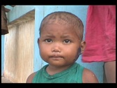 Stock Video Footage of Malnourished Kid ( wound on his face )