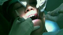 Dentist Buffering Molars - stock footage
