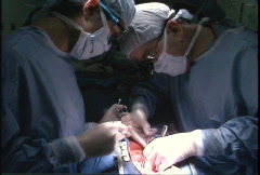 Surgeons working during open heart surgery Stock Footage