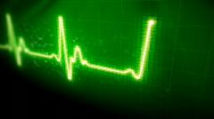Seamlessly looping EKG heart monitor. HD progressive. - stock footage
