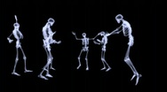 Stock Video Footage of Xray - Group of human skeleton dancing