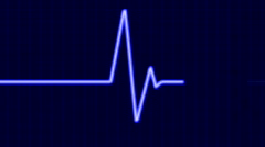 Cardiogram Stock Footage