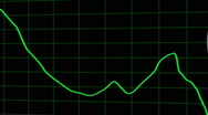 Stock Video Footage of Jittery Dollar Graph