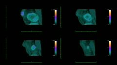 MRI scanner at work Stock Footage