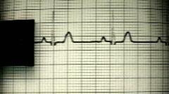 EKG printer close up V2 - HD  - stock footage