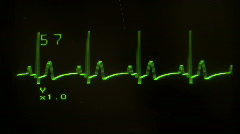 EKG screen close up flatline  - HD  Stock Footage
