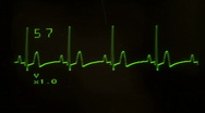 Stock Video Footage of EKG screen close up flatline  - HD