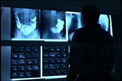 Doctor looks at  X-rays - stock footage