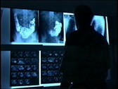 Stock Video Footage of Doctor looks at  X-rays