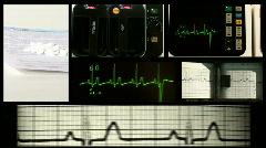 EKG montage - HD  - stock footage
