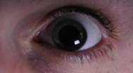 Eye dilates in bright light Stock Footage