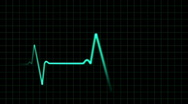 Stock Video Footage of EKG heartbeat monitor, animation
