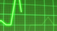 Stock Video Footage of ECG pulse trace monitor