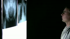 Xray Doctor Stock Footage