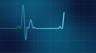 Stock Video Footage of EKG heart monitor