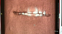 Dental X-rays 1 Stock Footage