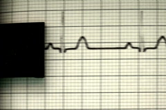 EKG printer V1 - NTSC - stock footage
