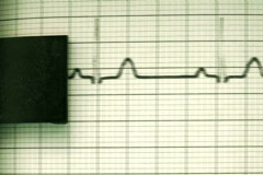 EKG printer V3 - NTSC - stock footage