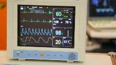 monitor of indications of action of heart, frequency and amplitude of reductions - stock footage