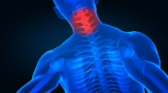 Stock Video Footage of Pain in cervical spine part with highlighted area