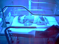 Baby with Abnormal Bilirubin Stock Footage
