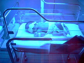 Stock Video Footage of Baby with Abnormal Bilirubin