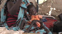Sudan: Malnourished baby in IDP camp  - stock footage