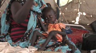 Stock Video of Sudan: Malnourished baby in IDP camp  Stock Footage