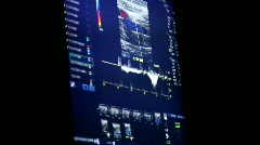 Echocardiogram 2 Stock Footage