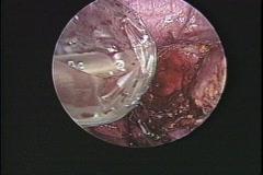 Endoscopy, medical procedures, Stock Footage