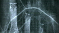 X-ray film background,Medical material. Stock Footage