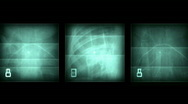 Stock Video Footage of X-ray film background,Bones,fractures,surgical,treatment,criminal-cases,dangerou
