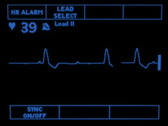 Stock Video Footage of Complete Heart Block 1861