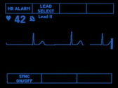 Stock Video Footage of Junctional Rhythm 1864
