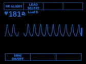 Stock Video Footage of Ventricular Tachycardia 1874