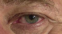 Fast moving bloodshot eye Stock Footage