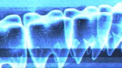 t301 teeth dental digital - stock footage