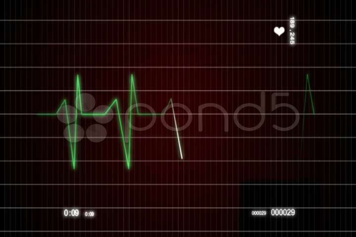 After Effects Project - Pond5 ECG Cardiovascular heart monitor 954174