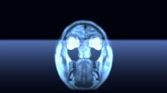 MRI scan Stock Footage