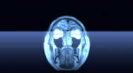 Stock Video Footage of MRI scan