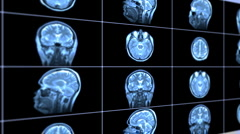 MRI scan Stock Footage