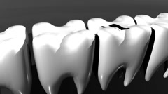 T303 cavity tooth decay teeth Stock Footage