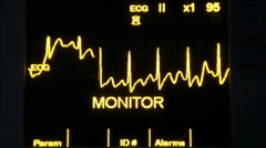 actual EKG monitor slowmotion HD 1080p - stock footage