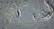 Bacteria in Microscope Stock Footage