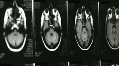 multiple xray mri brain scans - stock footage